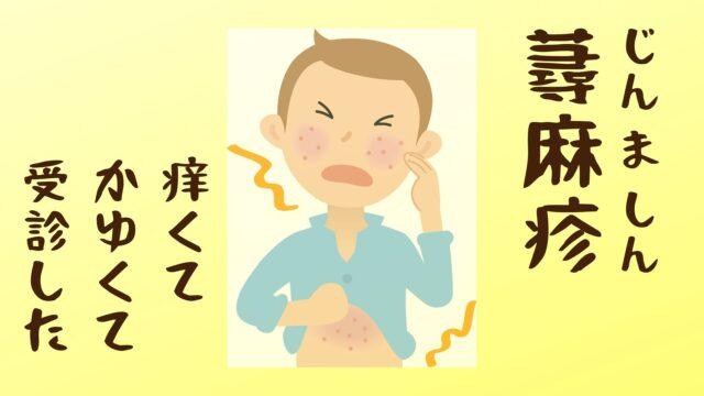 蕁麻疹(じんましん)の薬をずっと飲み続けないといけないって本当なの?